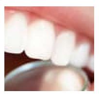 Dentalix - ขายที่ไหน - original - หาซื้อได้ที่ไหน - ซื้อที่ไหน