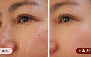 Beauty Bloom Skin - ซื้อที่ไหน - ขายที่ไหน - original - หาซื้อได้ที่ไหน