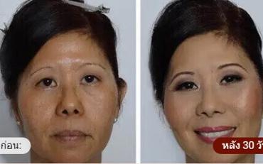 Beauty Bloom Skin - รีวิว - pantip - พันทิป